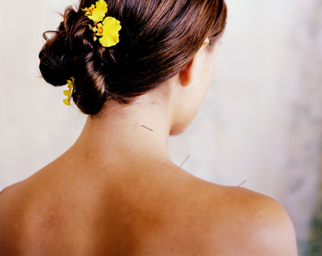 Mal Di Testa L Agopuntura Funziona Silhouette Donna