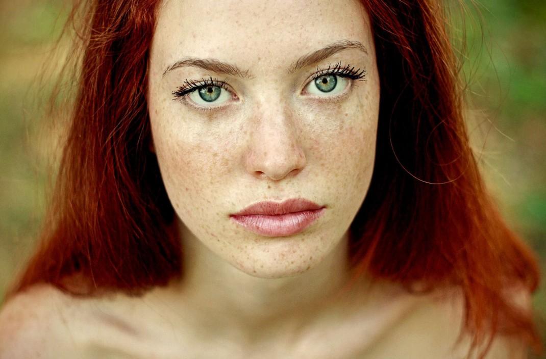 Il pigmentary nota sulla pelle del bambino