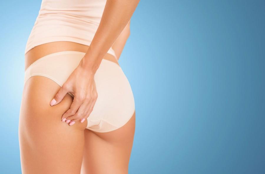 Cellulite o grasso? Impara a distinguerli